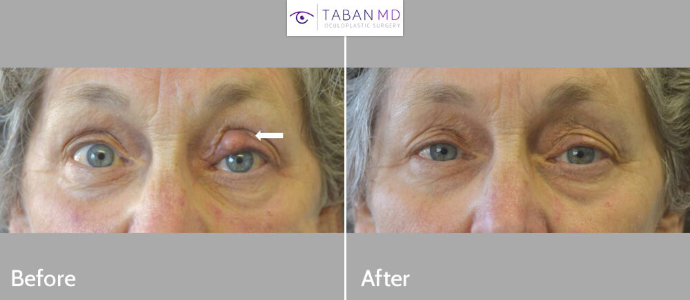 70+ year old woman underwent left upper eyelid chalazion (stye) removal.