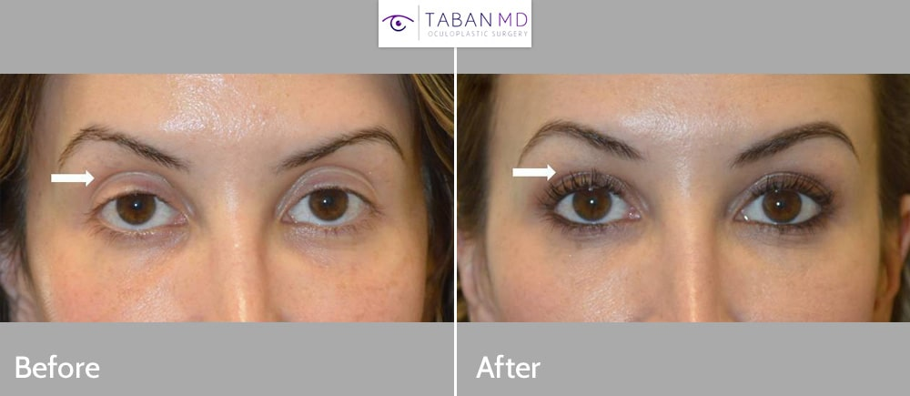 Young beautiful woman, with tired appearing eyes, underwent scarless internal droopy upper eyelid ptosis surgery and upper eyelid filler injection. Note more rested, youthful eye appearance in after photo.