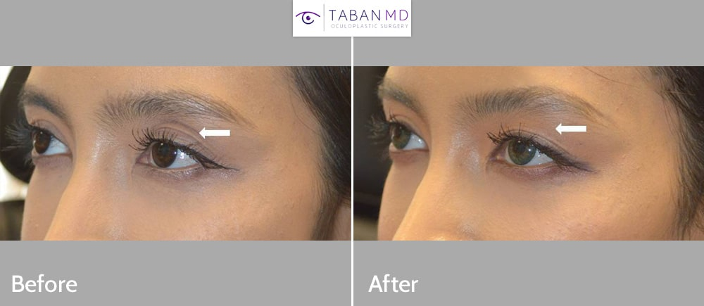 Young beautiful woman, with sunken left upper eyelid causing eye asymmetry, underwent left upper eyelid filler injection.