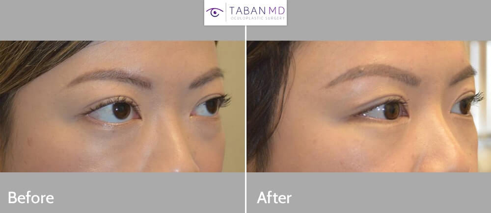 Young beautiful woman, with Graves thyroid eye disease bulging eyes, underwent scarless orbital decompression surgery and minimal invasive lower eyelid retraction surgery.