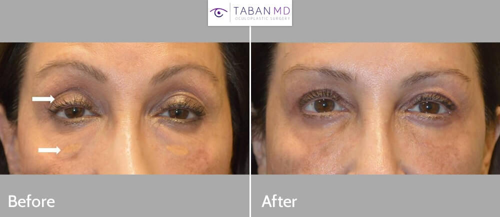 60+ year old woman, looking tired and older, underwent upper and lower blepharoplasty plus droopy upper eyelid ptosis surgery and eyelid xanthalasma (cholesterol deposit) removal. Note more rested youthful eye appearance.