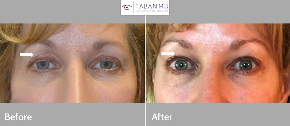 60+ year old woman, looking tired and older, underwent droopy upper eyelid ptosis surgery, upper blepharoplasty, and upper eyelid filler injection.