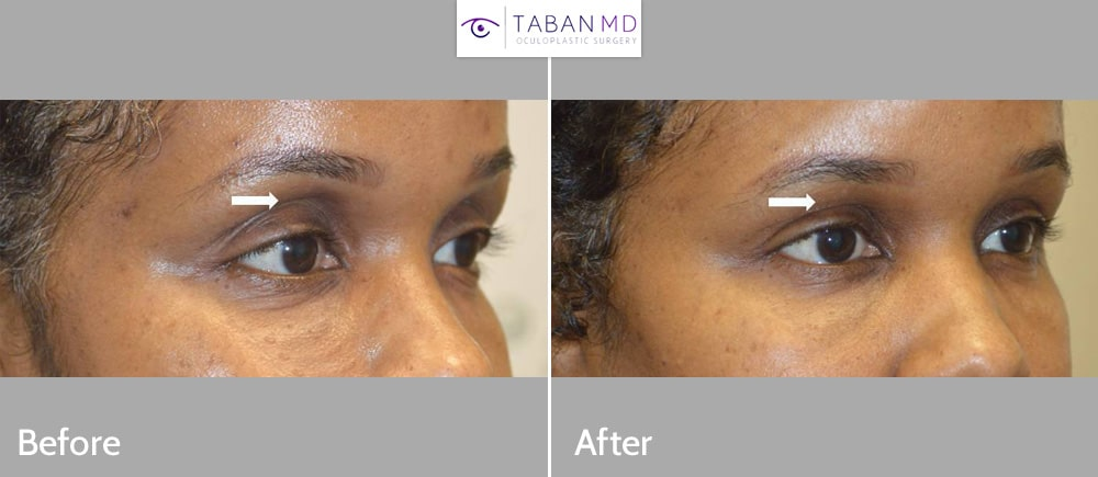 Upper eyelid filler injection to improve the sunken hollow upper eyelids in this African American woman.
