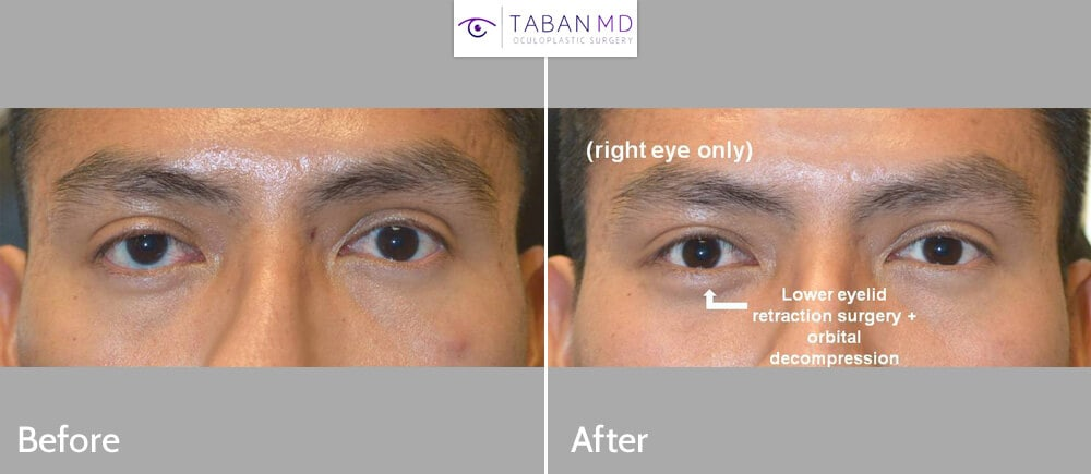 Young man, with genetic eye asymmetry with more bulging prominent right eye and lower eyelid retraction with sclera show, underwent right orbital decompression and right lower eyelid retraction surgery with canthoplasty