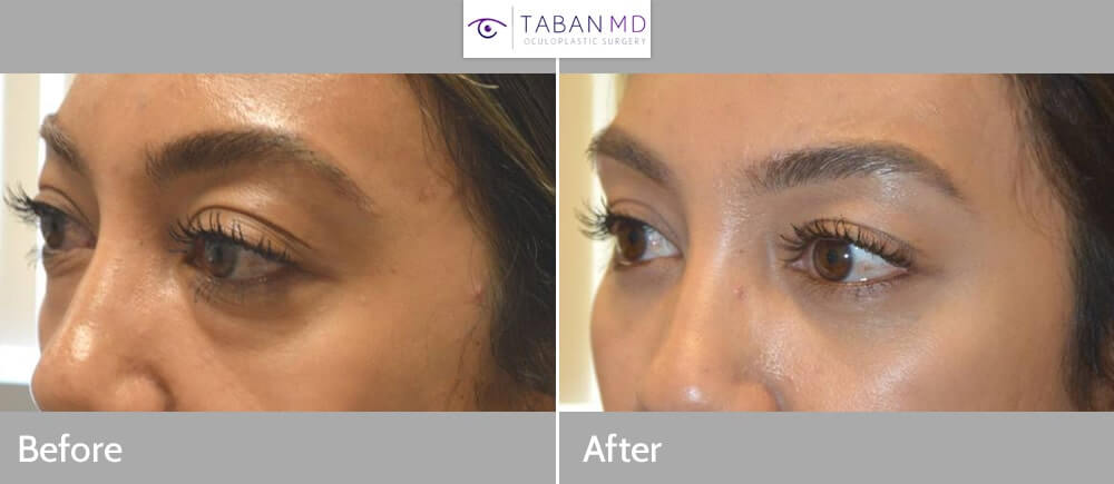 Orbital decompression page and gallery: Beautiful woman, affected by Graves thyroid eye disease causing bulging eyes and eye fat bags, underwent scarless orbital decompression and lower blepharoplasty. Note more natural and rested eye appearance in after photo 1 month after surgery.