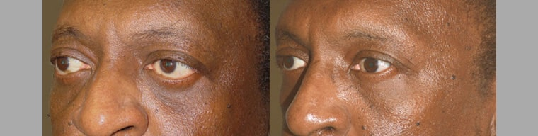 Middle age male, with thyroid eye disease, who underwent orbital decompression followed later by lower eyelid retraction surgery and canthoplasty to give more almond shape eyes.