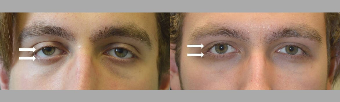 18 year old young man, with congenital droopy lower eyelids with negative canthal tilt and droopy upper eyelids (ptosis), looking sad and tired, underwent lower eyelid retraction surgery with canthoplasty and scarless droopy upper eyelid ptosis surgery. Before and 3 months after eye plastic surgery photos are shown.