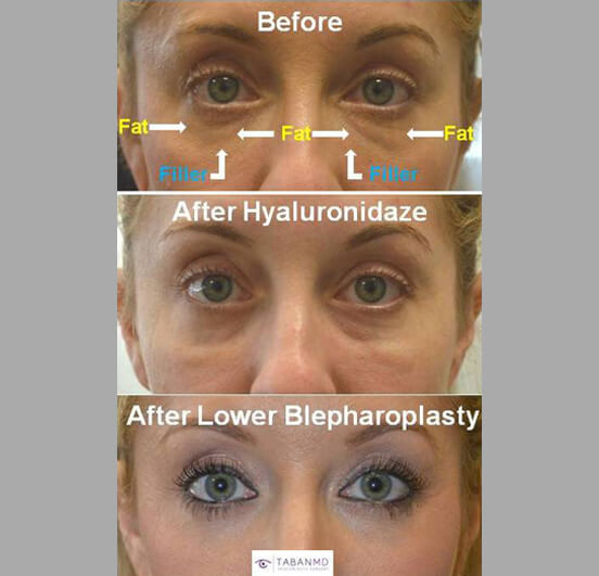 37 year old female, with history of unsuccessful under eye filler (to camouflage under eye fat bags) underwent initial hyaluronidaze to dissolve the filler followed later by transconjunctival lower blepharoplasty with fat bags repositioning and skin pinch. Before and 3 months after eyelid surgery photos are shown.