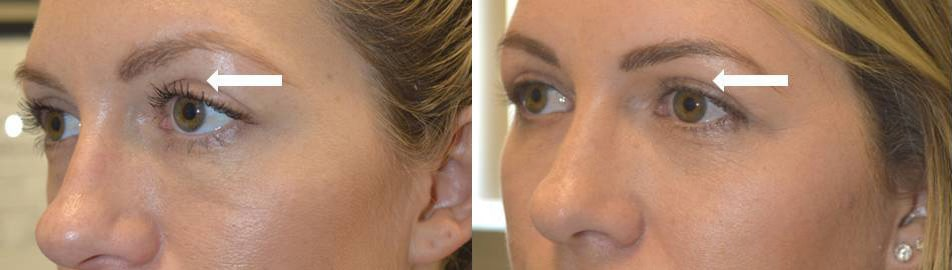 Young lady, with history of aggressive upper blepharoplasty (by another surgeon) resulting in sunken hollow upper eyelids, underwent upper eyelid filler injection. Before and 1+ year after upper eyelid filler injection photos are shown. Note the longevity of the eyelid filler treatment with improved youthful eye appearance.