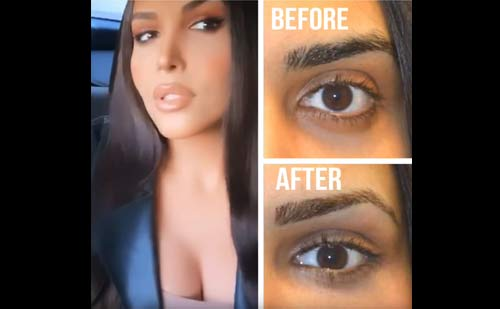 Video selfie of a happy transgender woman who underwent almond eye surgery with lower eyelid retraction surgery and canthoplasty, customized infraorbital rim silicone implant, customized orbital decompression, and upper eyelid filler.