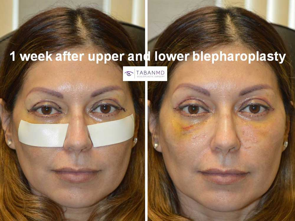 Photo showing healing 1 week after upper blepharoplasty and lower blepharoplasty in a beautiful woman.