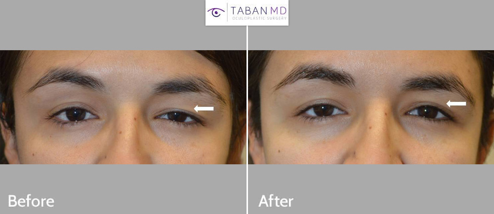 Young woman with significant eye asymmetry underwent left upper blepharoplasty and left upper eyelid ptosis surgery with improvement in eye symmetry.