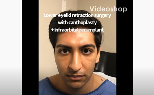 Young man with congenital lower eyelid retraction with sclera show and under eye hollowness underwent lower eyelid retraction surgery with canthoplasty (almond eye surgery) and infraorbital rim silicone implant. His entire journey is shown.