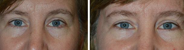 Before and one week after removal of large left lower eyelid lesion at the lash line.
