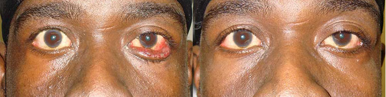 Before (left) and 3 months after (right) lower eyelid ectropion surgery.