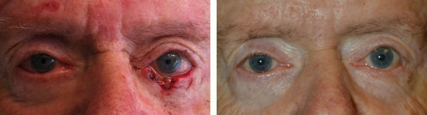 Before (left) lower eyelid cancer after Mohs removal with large defect and 3 months after (right) lower eyelid cancer reconstruction.
