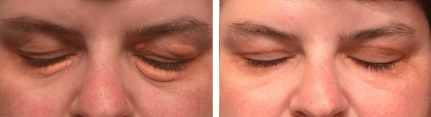 Before (left) and after (right) surgery for large eyelid xanthalasma (eyes closed)
