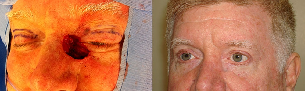 Before (left) 56-year-old male with large eyelid defect following eyelid basal cell carcinoma removal. After (right) reconstruction surgery using multiple flaps for natural-looking results and preserved function.
