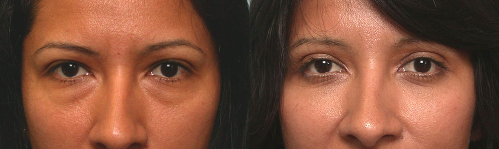Before (left) and 2 months after (right) cosmetic upper blepharoplasty (to remove extra skin hanging on lashes) and lower blepharoplasty (transconjunctival approach with fat redraping).