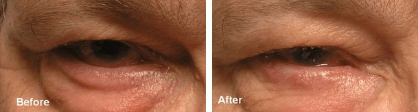 Before (left) and after (right) lower eyelid entropion surgery.