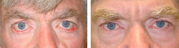 Before (left) and 4 months after (right) lower eye fold ectropion surgery (with switch flap technique, eyelid skin graft).