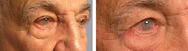 Before (left) and 2 months after (right photo) of right lower eye fold entropion surgery (eyelid turns in).