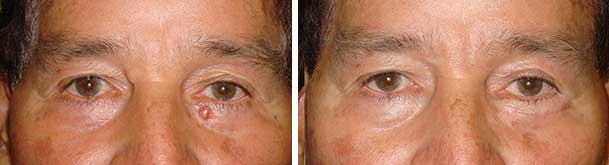 Before (left) and after (right) LEFT lower eye fold basal cell carcinoma resection and reconstruction.
