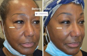 66 year old female, underwent scarless lower blepharoplasty (transconjunctival technique with fat repositioning) to improve under eye fat bags. Note more rested, youthful, natural eye appearance after cosmetic eyelid surgery.