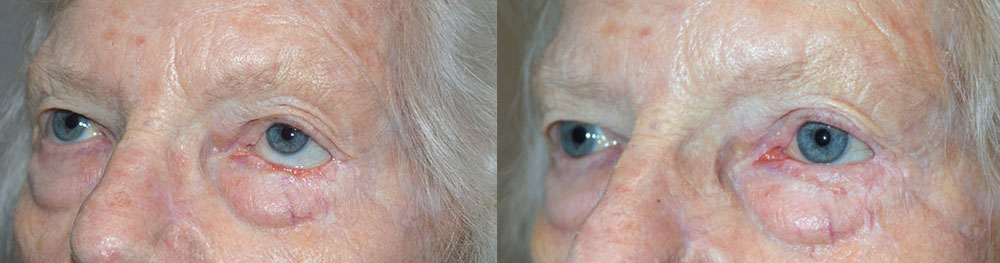 Before (left) 70+ year old female, with left lower eyelid retraction from previous skin cancer surgery. After (right) 3 months after total left lower eyelid reconstruction, retraction surgery, with skin graft.