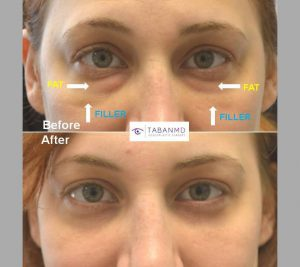 32 year old female, with previous indequate under eye filler injection to tear trough area, underwent first hyaluronidase to remove the filler and then lower blepharoplasty (transconjunctival with fat repositioning with skin pinch). Note youthful natural results with much more improved under eye appearance.