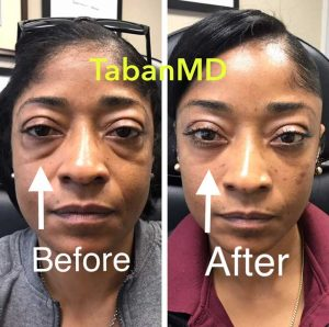 42 year old African American woman, underwent scarless lower blepharoplasty (transconjunctival technique with under eye fat bags repositioning) plus lacrimal gland repositioning. Before and 2 months after eyelid surgery photos are shown. Note more youthful eye appearance with natural results.