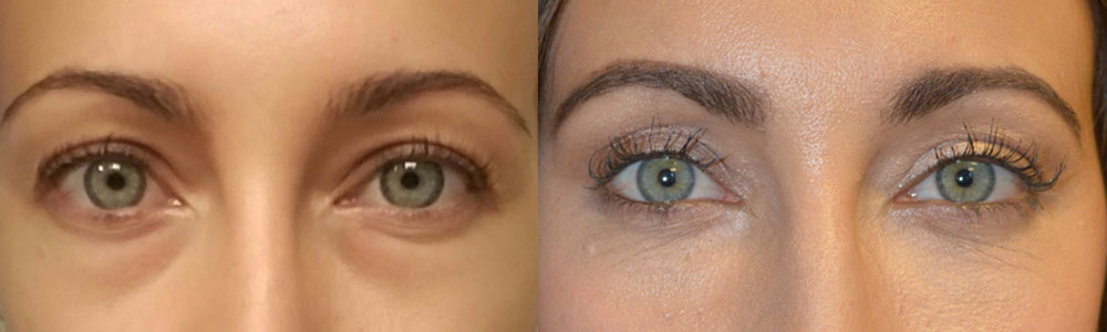 29-year-old female, with under eye bags (fat prolapse) and dark circles (tear trough deformity hollowness), underwent transconjunctival lower blepharoplasty (scar-less, no stitch incision inside lower eyelid) with fat repositioning to get of the bags and fill in the hollow under area at the same time. The procedure was done under local anesthesia with oral sedation in the office. You can find her story and surgical video on this page.